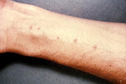 Skin vesicles on the forearm, created by the penetration of Schistosoma.