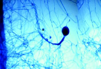 External hyphae of mycorrhizae in soil that increases uptake of nutrients and moisture.