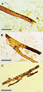 The structures recovered from dino bone by Thomas Kaye and colleagues, which they claim are not blood vessels but modern biofilms.