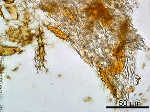 Cells and soft tissue can be clearly seen in this dinosaur bone.