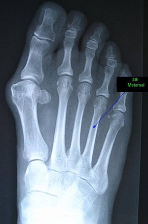 X-ray of a human foot showing the 4th metatarsal.