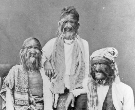 Three generations of the Mandalay family suffered from what could have been Congenital hypertrichosis universalis (human werewolf syndrome)