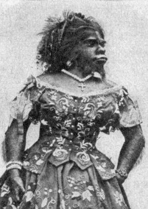 Julia Pastrana (1834–1860)