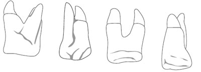 A drawing of the Nebraska-man tooth. From left to right; posterior, outer, anterior and inner perspectives.