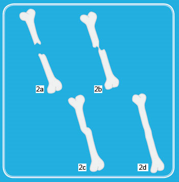Diagram showing four stages of bone healing